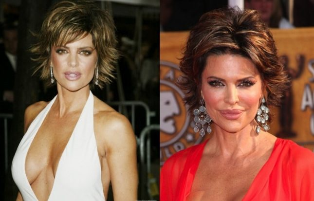 lisa rinna before and after plastic surgery